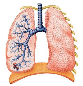 Почему болят лёгкие